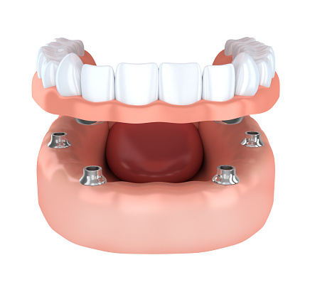 Implant overdentures at Bryan Hill DDS
