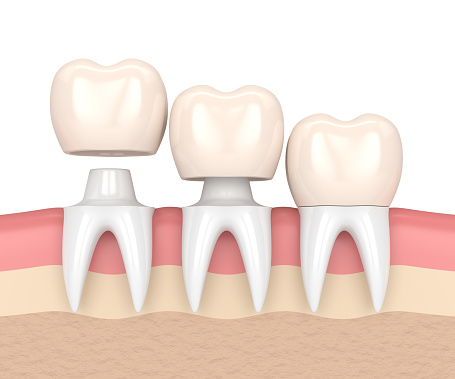 Crowns at Bryan Hill DDS